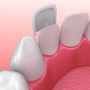 66754859 - dental veneers: porcelain veneer installation procedure. 3d illustration