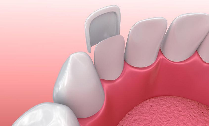 que son las carillas dentales y cual es su función