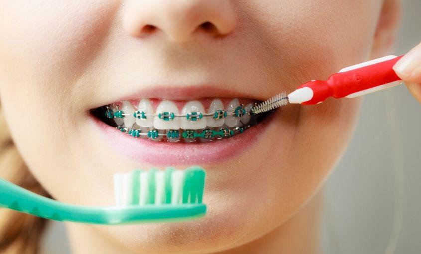 cómo usar el cepillo interdental