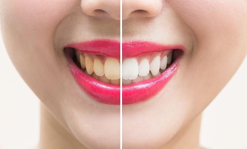 conoce las causas de los dientes amarillos