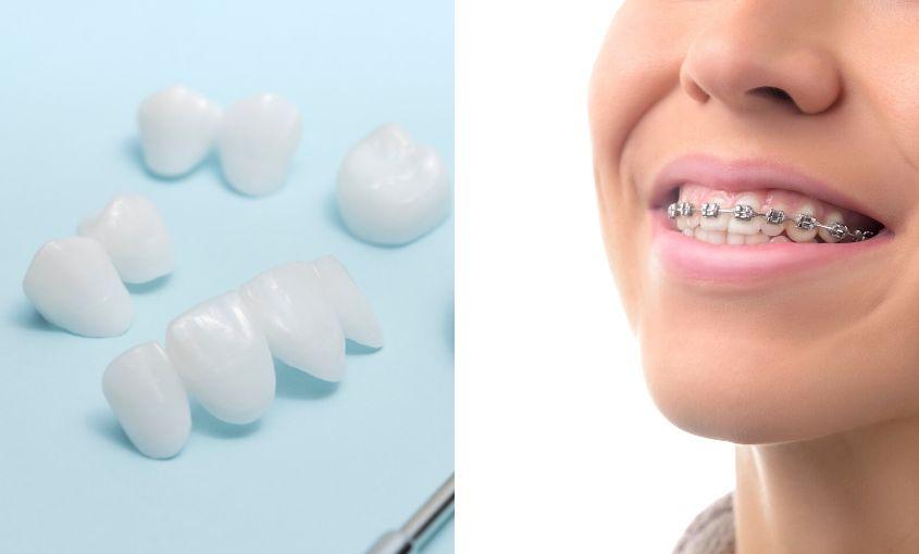 carillas estética su ortodoncia