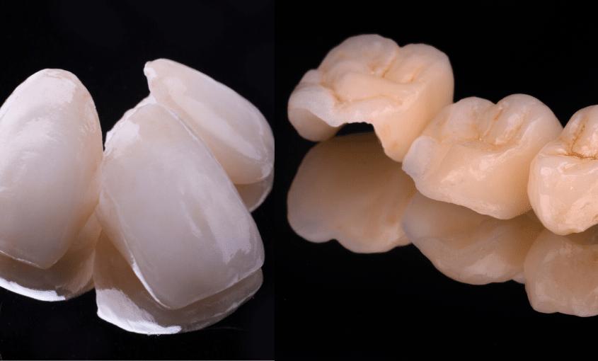 carillas esteticas coronas dentales