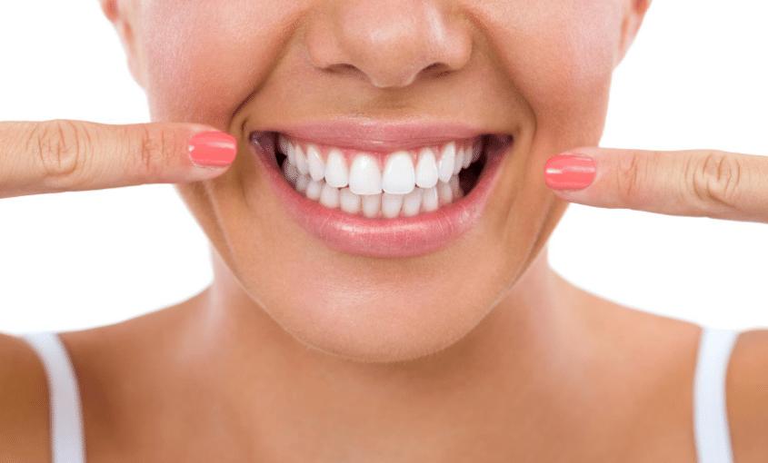 cómo mantener tu blanqueamiento dental más tiempo