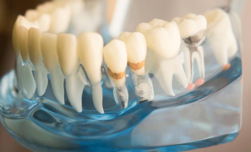 placa dental lo que necesitas saber