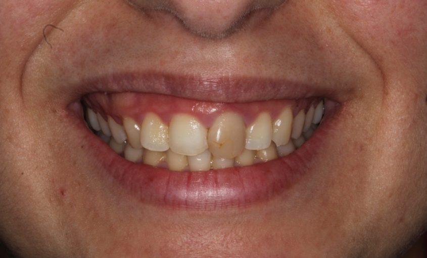 causas y tratamiento de los dientes oscuros